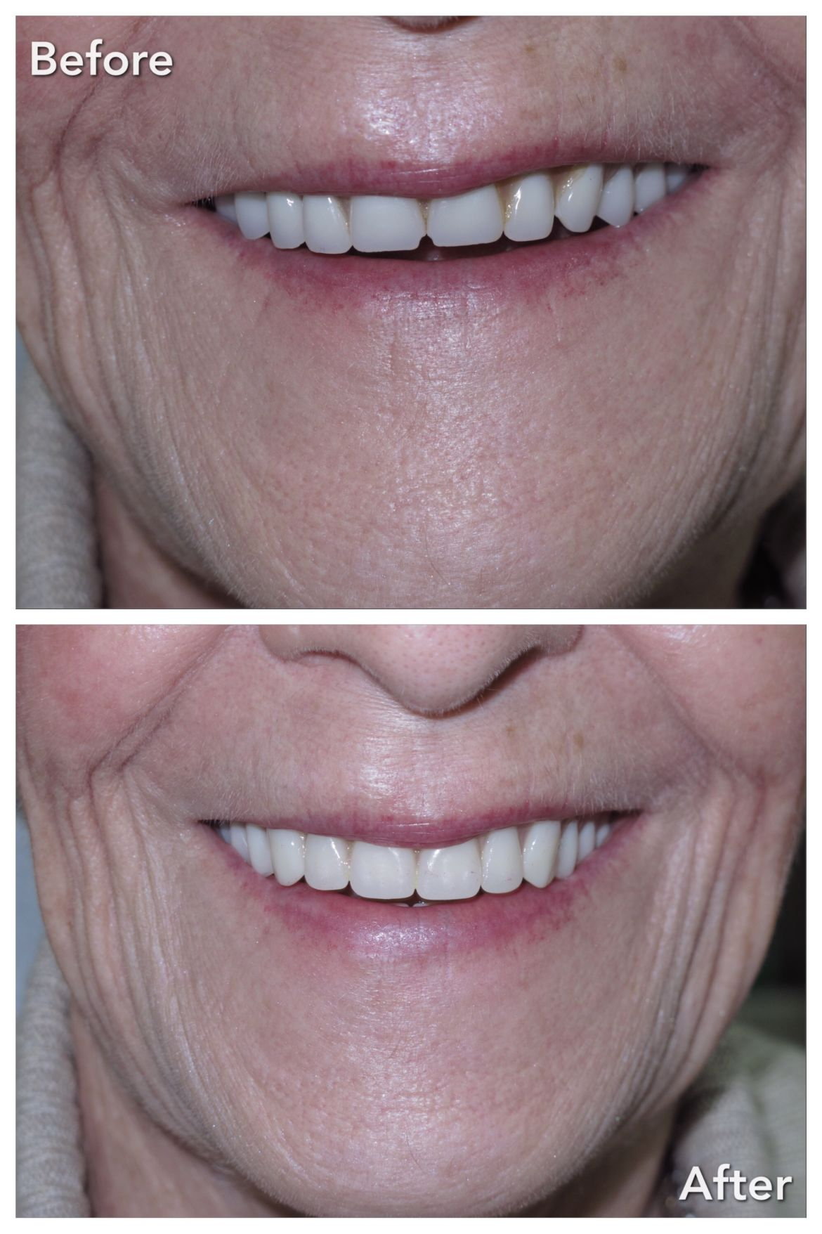 Complete Upper & Lower Treatment