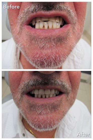 Complete Upper Denture