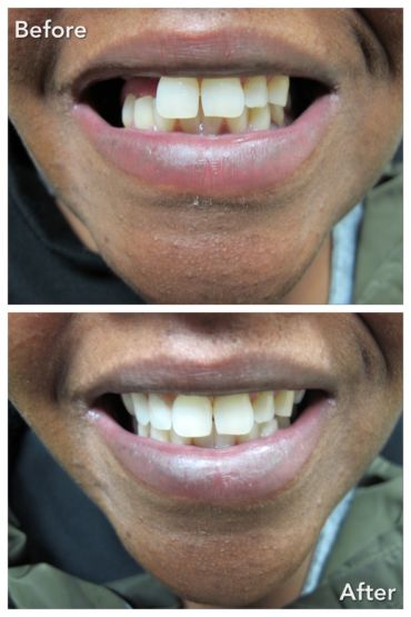 Partial Denture Treatment