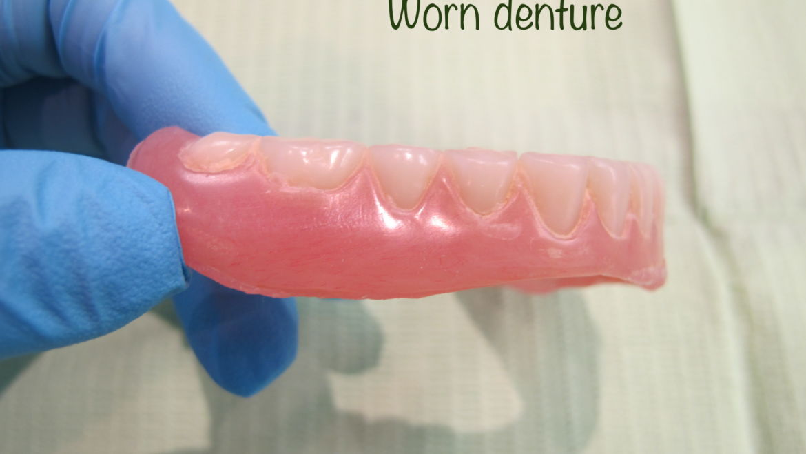 Do You Need New Dentures?