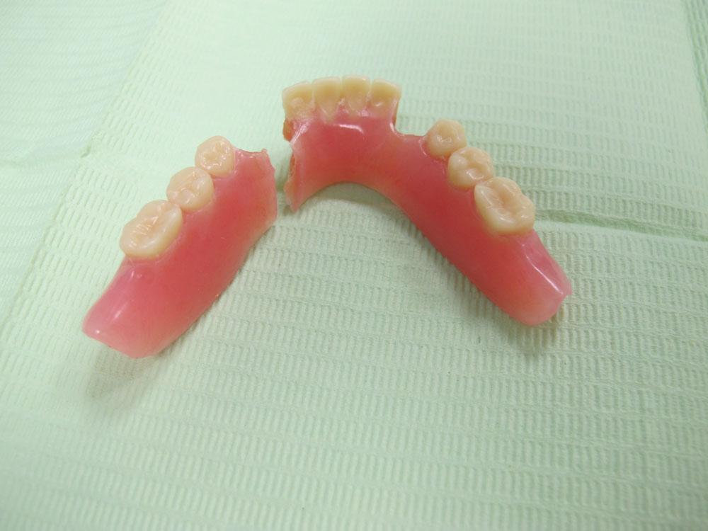 Oh No, I've Just Broken my Dentures!