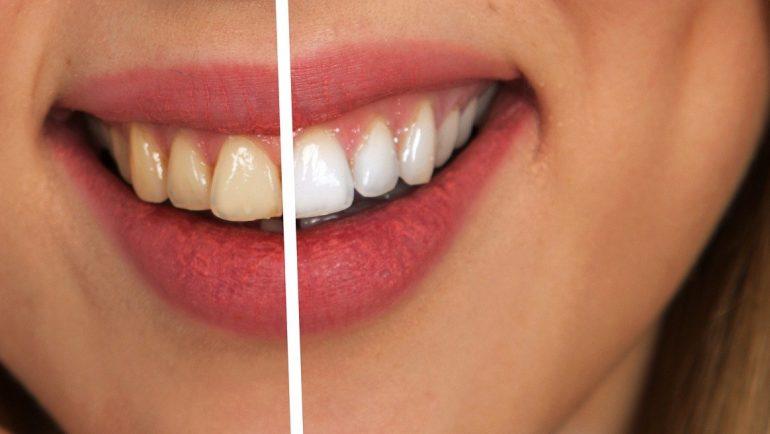 Smoking and Dentures